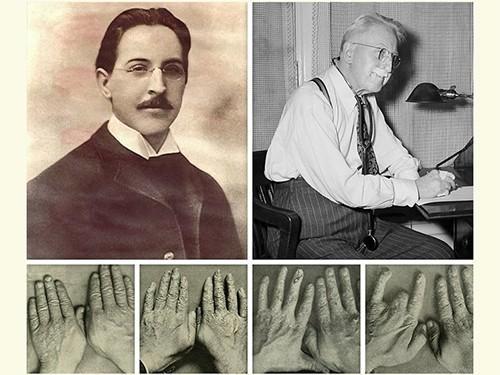 Эмиль Генрих Груббе (1875-1960), родоначальник радиотерапии