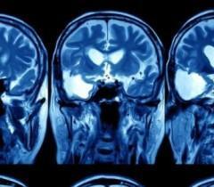 Искусственный интеллект от Google будет выявлять рак по снимкам КТ и МРТ
