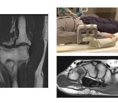 30 сентября - 1 октября 2016 года, Кафедра Лучевой Диагностики ЕМС проводит двухдневный семинар по теме: «МРТ локтевого сустава и кисти».