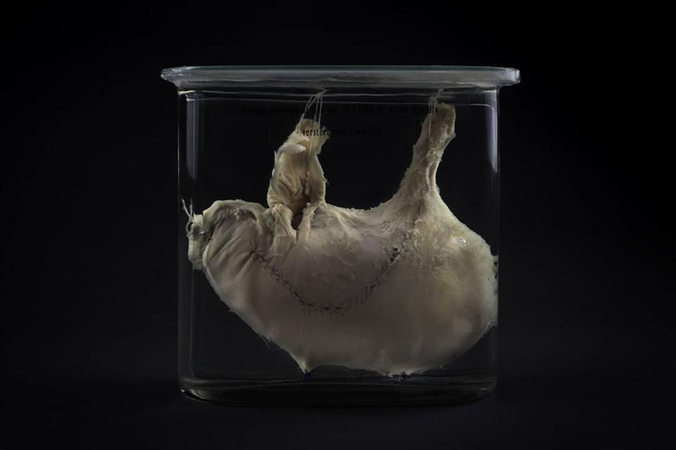 Секционный препарат: оперированный желудок Терезы Хеллер, умершей от метастазов 23 мая 1881 года. Музей Йозефиниум, Вена.