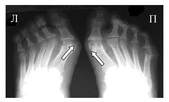Рис. 2 Симптом «пробойника» в головках плюсневых костей обеих стоп в сочетании с вальгусной девиацией I плюсне-фаланговых суставов