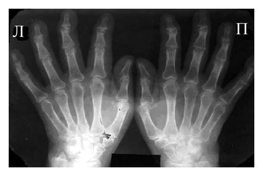 Рис. 3 Сочетание ревматоидного артрита и остеоартроза