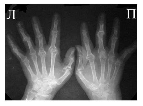 Рис. 5 Множественный остеолиз и деструкции эпифизов костей с разнонаправленными деформациями суставов при псориатическом артрите.