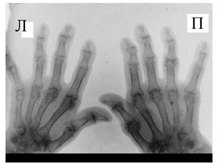 Рис. 6 Сужение суставной щели, остеофиты и субхондральный остеосклероз, кистовидные просветления костной ткани, костные дефекты (псевдоэрозии), деформации эпифизов костей при остеоартрозе.