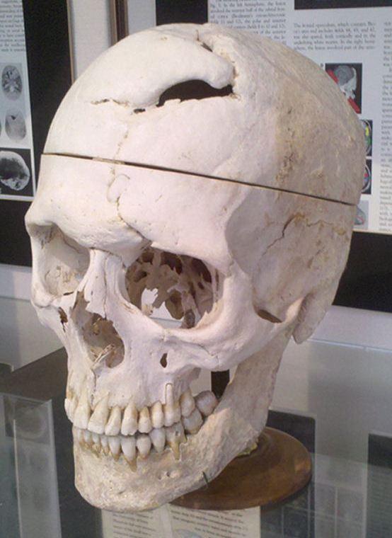Череп Финеаса Гейджа. Warren Anatomical Museum