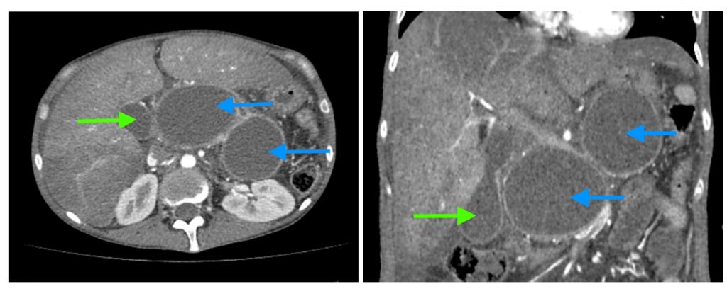 Как выглядят кисты поджелудочной железы? На компьютерных томограммах (КТ) у молодой женщины, злоупотребляющей алкоголем, с множественными эпизодами острого панкреатита в анамнезе, видны две большие псевдокисты (синие стрелки) головки, тела и хвоста поджелудочной железы, сдавливающие на окружающие ткани. Желчный пузырь (зеленая стрелка) увеличен из-за сдавления пузырного протока псевдокистой. Обратите также внимание на признаки алкогольного гепатита: увеличение печени и неравномерное накопление ею контраста, жидкость вблизи ее края.