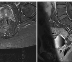 Киста простатической маточки на МРТ (слева режим STIR, справа Т1-ВИ с подавлением сигнала от жира). Визуализируется центрально расположенное объемное образование с ровными краями, с типичным гиперинтенсивным сигналом на STIR и гипоинтенсивным сигналом на Т1 ВИ