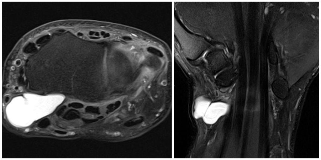 На МРТ (Т2 ВИ с подавлением сигнала от жира) определяется объемное образование с гиперинтенсивным сигналом, имеющее тонкую капсулу и перегородку, вплотную прилежащее к лучезапястному суставу, – ганглий.