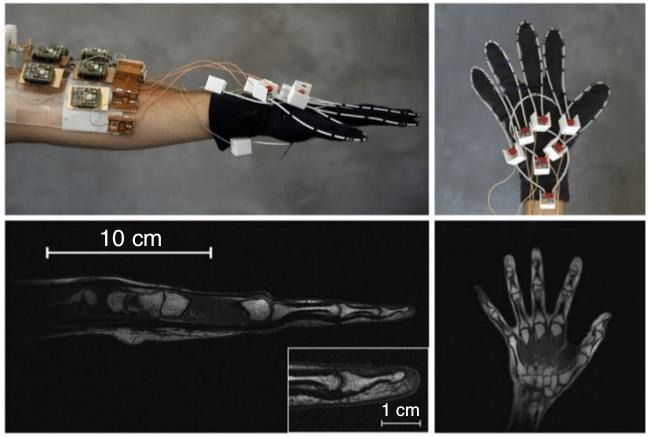 Несколько срезов трехмерного изображения свободной ладони, полученного с помощью предложенного прототипа МРТ-перчатки Bei Zhang et al./ Nature Biomedical Engineering, 2018
