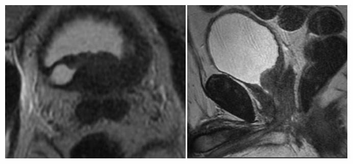 МРТ рака простаты. На аксиальной и сагиттальной томограммах определяется объемное образование предстательной железы с низкой интенсивностью сигнала, неправильной формы, с бугристыми краями, обуславливающее обструкцию правого мочеточника (гиперинтенсивный сигнал на томограмме слева), – карцинома.