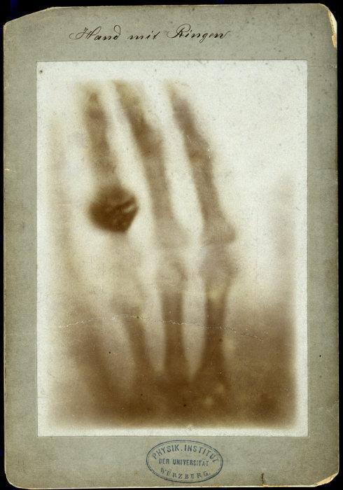 «Рука с кольцом» Анны Рентген: первый рентгеновский снимок человека, 1895 год.   Фото: wellcomeimages.org. Источник: http://www.kulturologia.ru/blogs/241017/36433/