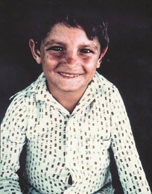 Анхель, больной хореей Гентингтона мальчик из венесуэльской деревни Лагунета, обладатель исключительно длинного полиглутаминового тракта в патологическом гене, вызывающем развитие ХГ. Прожил 11 лет. Благодаря его генетическому материалу был открыт сам патологический ген и лекарственные препараты для его нейтрализации.