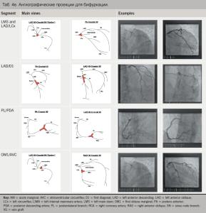 Проекции коронароангиография средства разжижающие кровь народная медицина