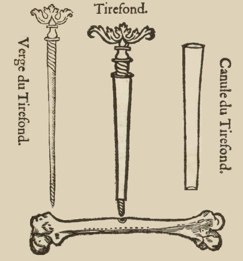 Натяжной винт (tirefond), которым вынимали пули, застрявшие в кости. Стержень с нарезкой (показан отдельно слева) ходит внутри прижатой к месту канюли (показана справа), ввинчивается в мягкую свинцовую пулю (показано в центре). Иллюстрация из первой книги Паре, изданной в 1545 году.