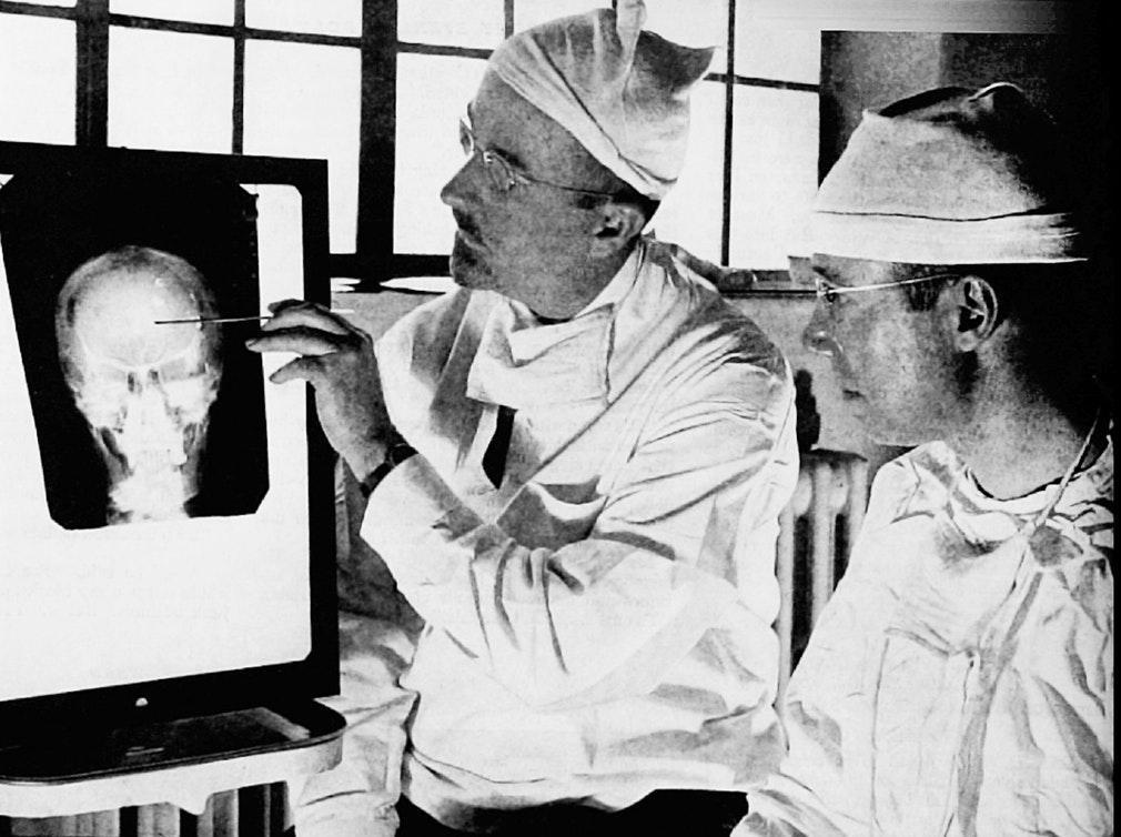 Уолтер Фримен (слева) и доктор Джеймс Уотс изучают рентген перед операцией. Фото: Harris A Ewing — Saturday Evening Post, 1941 год.