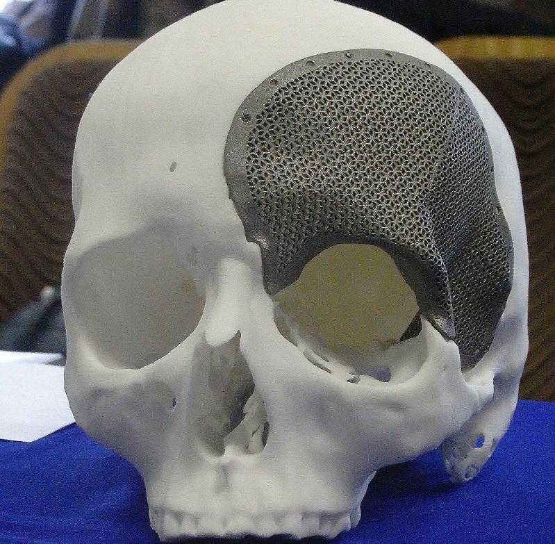 3D-модель восстановления черепной коробки