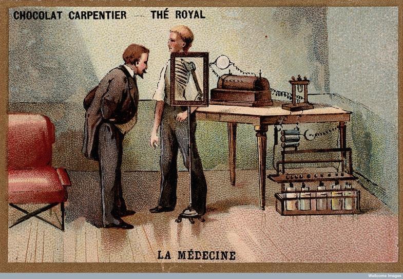 Вильгельм Конрад Рентген смотрит на экран, расположенный перед мужским телом. Хромолитография. Источник: Wellcome Library, London / Wellcome Images