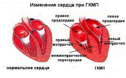 Гипертрофическая кардиомиопатия (ГКМП). О возможности физических ...
