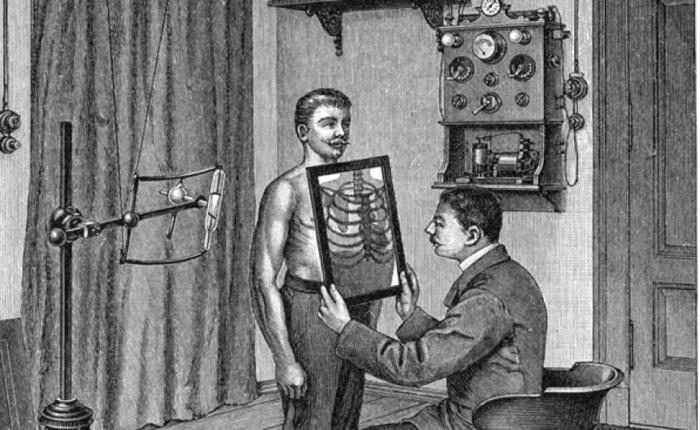 Врач смотрит рентгенограмму грудной клетки пациента, начало ХХ века.   Фото: nlo-mir.ru. Источник: http://www.kulturologia.ru/blogs/241017/36433/