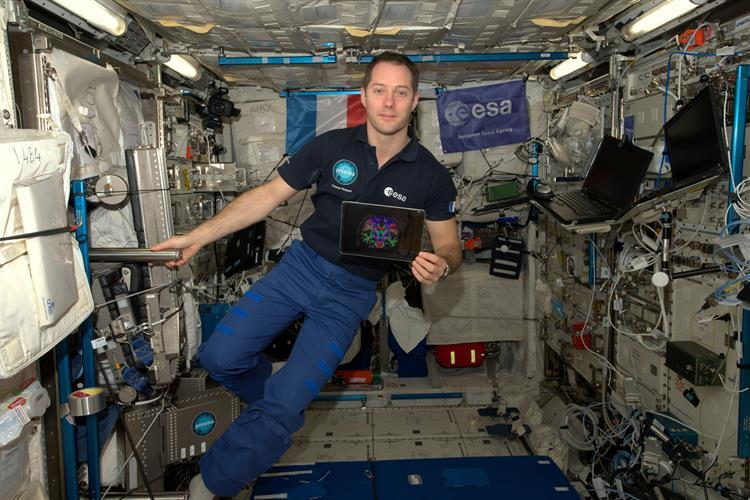 French astronaut Thomas Pasquet shows an MR image of his brain taken before he boarded the International Space Station. He returned to Earth in June 2017 after spending 196 days in orbit. Image courtesy of the European Space Agency and NASA.