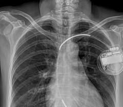 ИКД (имплантируемый кардиовертер-дефибриллятор) уменьшает опасность для жизни пациентов, у которых возможна внезапная остановка сердца, однако что мешало распространению одного из самых важных изобретений XX века?