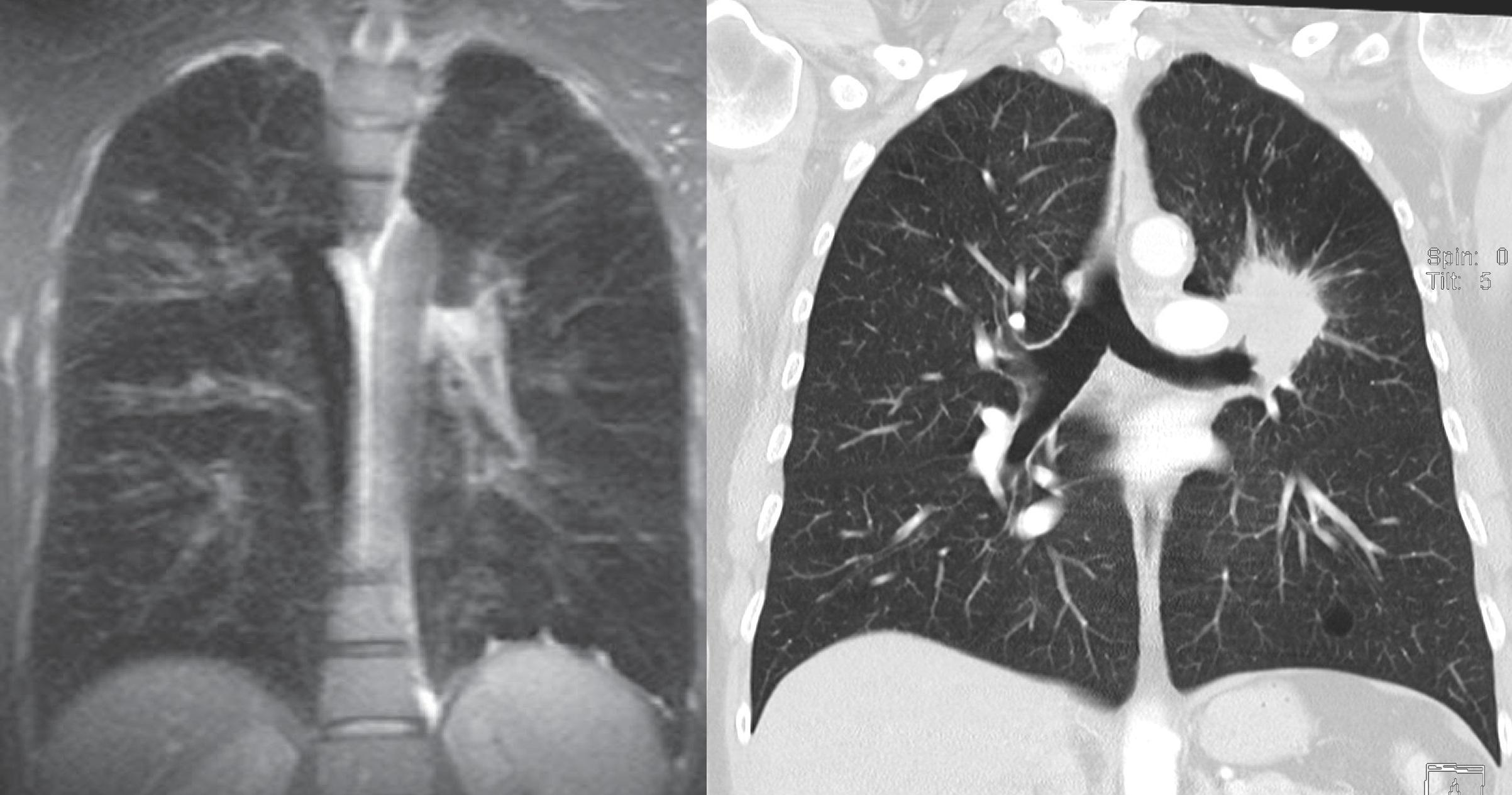 Это томограммы легких. Слева МРТ, в справа КТ. Контрастность и чёткость изображения справа существенно лучше.