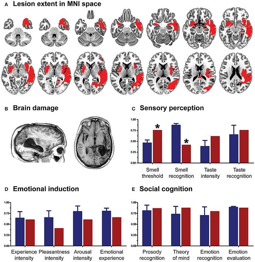 Повреждения мозга CG и результаты тестов после второго инсульта