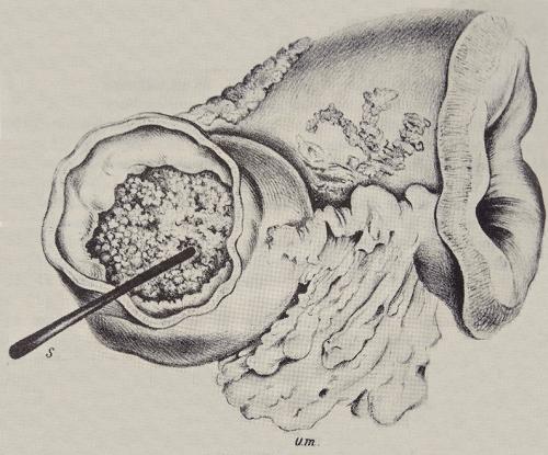 14-сантиметровый отрезок желудка с карциномой, удалённый 29 января 1881. Рисунок Антона Вёльфера, ассистента Бильрота на той операции. Для демонстрации плотности карциномы, забившей просвет желудка, показан кончик птичьего пера, который удавалось погрузить в массу опухоли только с большим усилием.