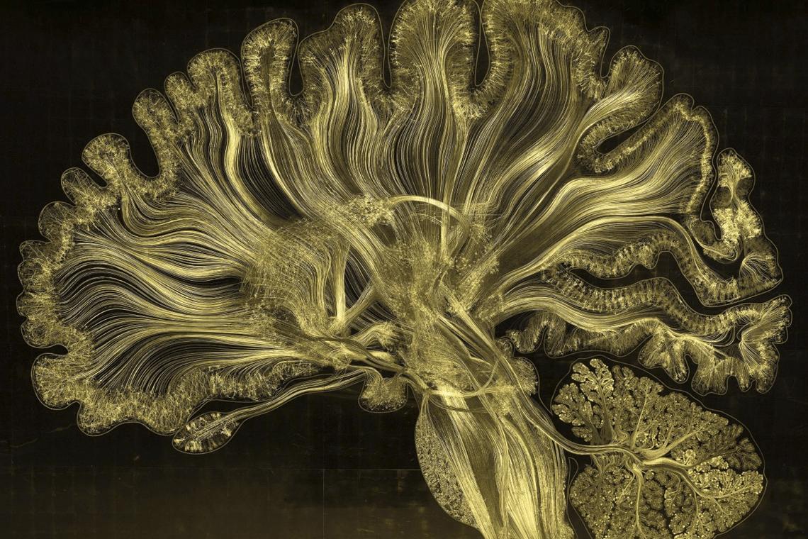 Изображение головного мозга, полученное путем электронного микротравления в белом свете