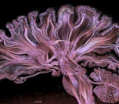 Изображение человеческого мозга, полученное при помощи электрического микротравления под фиолетовым и белым светом