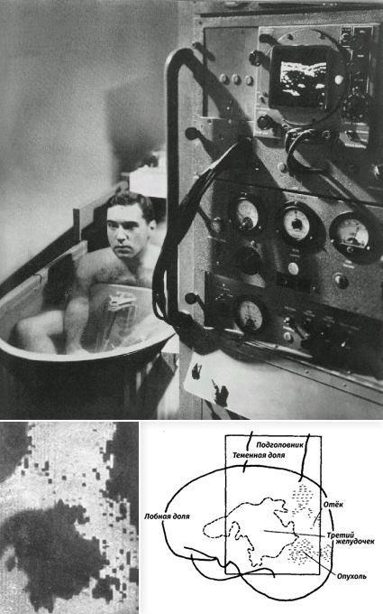Вверху: Первая аналоговая установка УЗИ с изображением на экране осциллографа. В ванне с водой – один из разработчиков аппарат Джеральд Посакони, чья почка видна на экране. Денвер, Колорадо, 1954. http://www.ob-ultrasound.net/posakony_notes.html Внизу: Красивая, но на поверку ошибочная интерпретация картины, полученной при анализе прошедших сквозь голову пациента звуковых лучей. Братья Дуссики, 1952 год.