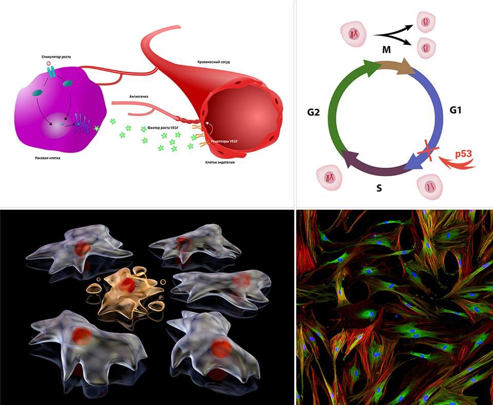 """Разного рода воздействие """"хранителя генома"""" белка p53 на клетки. Вверху слева: раковый ангиогенез. Клетка опухоли вырабатывает фактор роста VEGF, активизируя создание питающего её кровеносного сосуда. Сосуды, охватывающие опухоль подобно клешням рака, дали онкологическим заболеваниям название «рак». Белок p53 здоровых клеток в борьбе с онкопатологией подавляет избыток фактора роста VEGF. Графика: Shutterstock/FOTODOM/ellepigrafica Вверху справа: вмешательство белка p53 в клеточный цикл. «Страж генома» проверяет ДНК в конце первой фазы роста, перед её репликацией. Если обнаруживаются повреждения, рост останавливается, геном «ставится на ремонт». Итогом может быть запуск или списание всей клетки. Графика: Shutterstock/FOTODOM/ Alila Medical Media Внизу слева: клетка распадается на апоптозные тельца по приказу p53. Графика: Shutterstock/FOTODOM/Knorre Внизу справа: флуоресцирующие фибробласты – клетки лёгких человека – под микроскопом. Для профилактики рака лёгких (в частности, у курильщиков) белок p53 при сбоях в геноме этих клеток индуцирует их ускоренное старение. Фото: Shutterstock/FOTODOM/Damian Ryszawy"""
