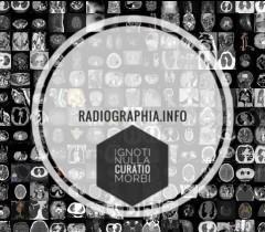 Радиография