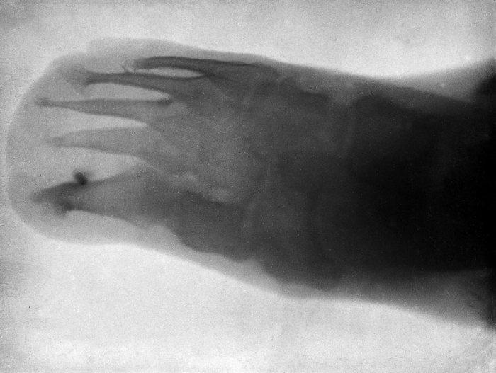 Нога шестилетнего Леонарда Шустера в 1896 году.   Фото: wellcomeimages.org. Источник: http://www.kulturologia.ru/blogs/241017/36433/