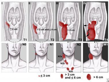 Cтадирование рака гортани по системе TNM
