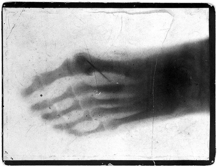 Снимок ступни актера, который загнал в ногу иголку.   Фото: en.wikipedia.org. Источник: http://www.kulturologia.ru/blogs/241017/36433/