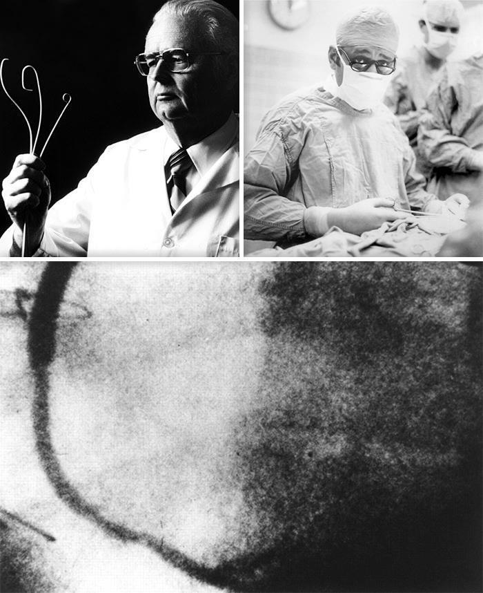 Вверху слева: доктор Мелвин Пол Джадкинс (1922-1985), кардиохирург, пионер коронарографии. В юности занимался электротехникой и радио. Сконструировал катетеры, приспособленные для точного попадания в определённую коронарную артерию (промышленный выпуск налажен в 1968 году). В 1967 году предложил и освоил пункцию бедренной артерии при коронарной ангиографии. Вверху справа: аргентинский кардиохирург Рене Фавалоро (1923-2000), автор идеи и первый исполнитель операции аортокоронарного шунтирования (7 мая 1967 года). Первый кардиохирург, лично выполнивший коронарографию. Внизу: первая в мире шунтография после АКШ (кадр из фильма, снятого Соунсом в мае 1967 года). Виден заполненный контрастом шунт, выполненный Фавалоро в ходе первой операции АКШ 7 мая.