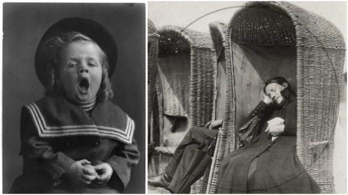 Фотографии пациентов, больных Л.Э., начало 20-го в.