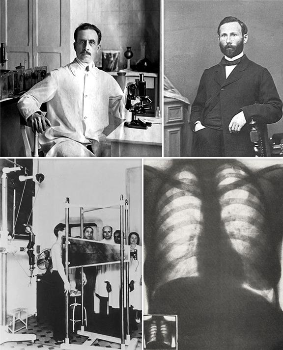 Вверху слева: Карлос Шагас (1879-1934) Вверху справа: Огюстен Николя Жильбер (1858-1927) Внизу слева: первое экспериментальное массовое флюорографическое исследование на улице Резенди, 128. Июль 1937 года. Первым слева лицом к зрителям стоит Маноэл Абреу. Внизу справа: одна из первых абреуграмм, как назывались в Бразилии флюорографические снимки. Формат кадра 24х36 мм.