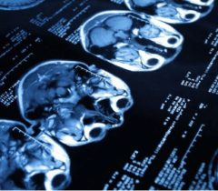 Искусственный интеллект для диагностики инсульта.