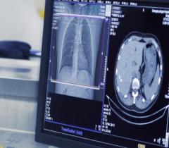 10 стартапов, использующих искусственный интеллект для борьбы с раком.